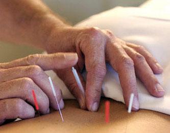 acupuntura11