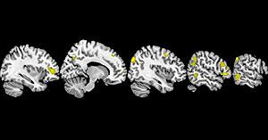 cerebro-fe