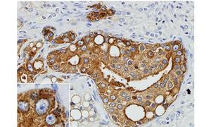 Sección de un cáncer de próstata humano / R. Schlaberg y H.M. Thaker